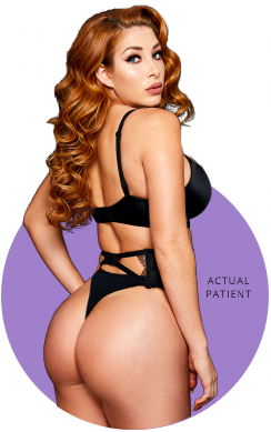Buttock Augmentation Surgery