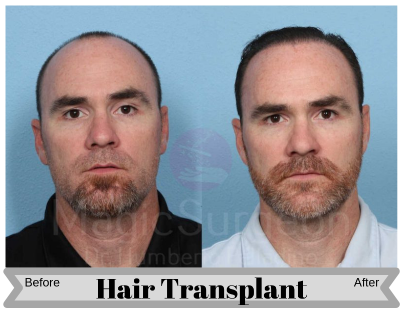 HAIR-TRANSPLANT-PATIENT-2A-800x534-Blog_BA_Img