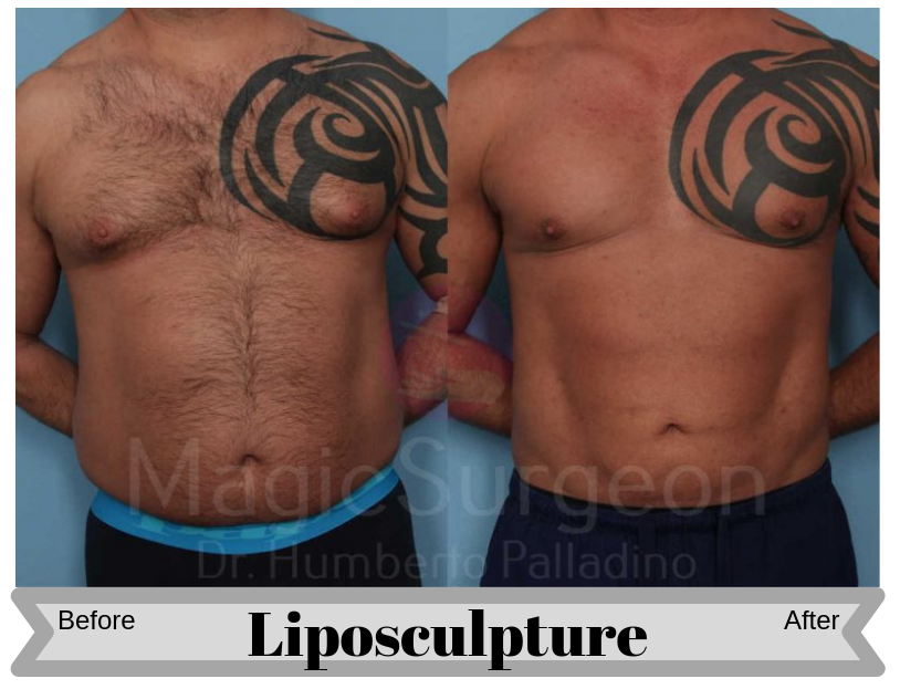 MALE-HD-LIPOSCULPTURE-PATIENT-1A-800x534-Blog_BA_Img