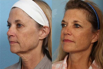 Before and After Neck Lift Surgery