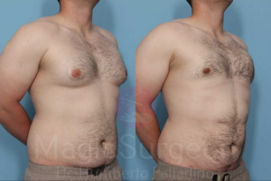 Palladino Male Breast Reduction Patient Before and After photos