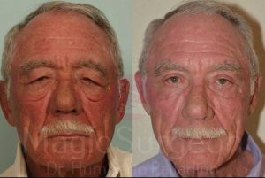 BLEPHAROPLASTY-PATIENT-4A by Dr. Palladino