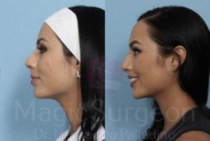 Magic Surgeon Rhinoplasty