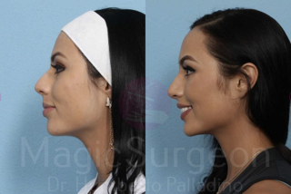 Should I Get Open Or Closed Rhinoplasty Magicsurgeon Dr Humberto Palladino