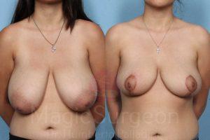 BREAST-REDUCTION-PATIENT-Palladino