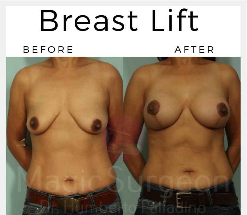 Breast-Lift-Patient-4a-Blog-BA-Img